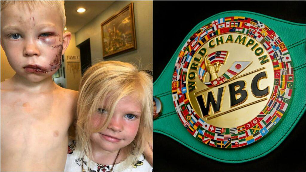Bridget Walker James honorary World Champ for protesting his little sister - FirstSportz